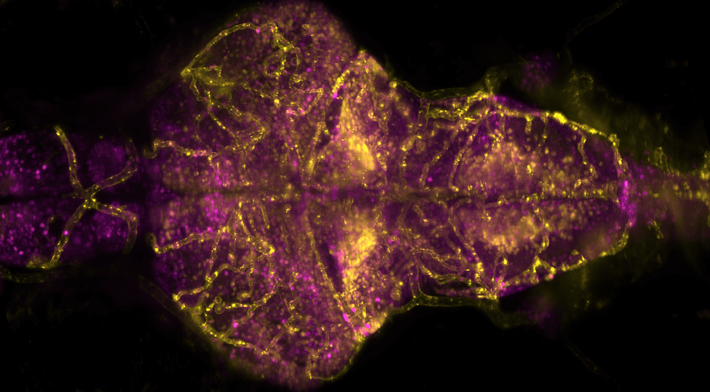 Vascular system and calcium levels in the larval zebrafish brain, recorded by Michael Weber (Morgridge Institute for Research) using a Flamingo T-SPIM light sheet microscope. Specimen kindly provided by Armin Bahl (Engert Lab, Harvard University; now University of Konstanz).